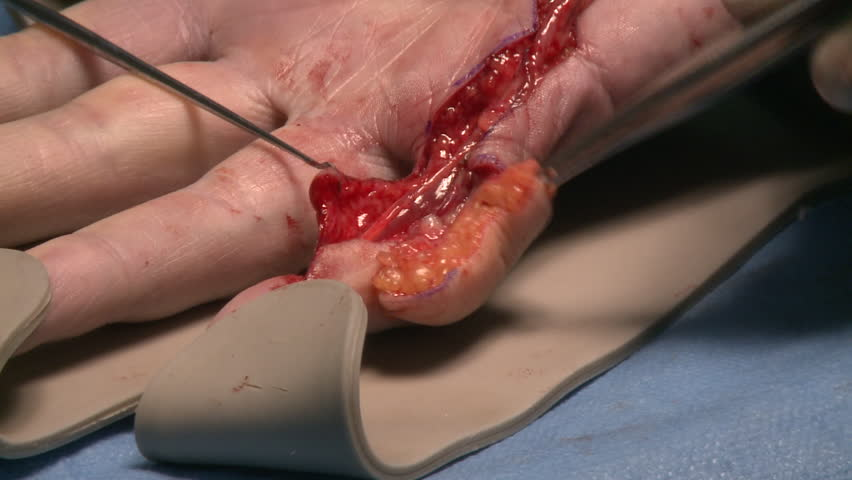 surgery in an operating room/rests an end portion of skin of the forearm