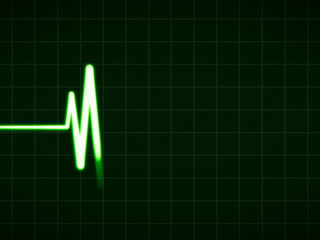 ECG Cardiovascular heart monitor showing heartbeat pulse. PAL. - SD stock footage clip
