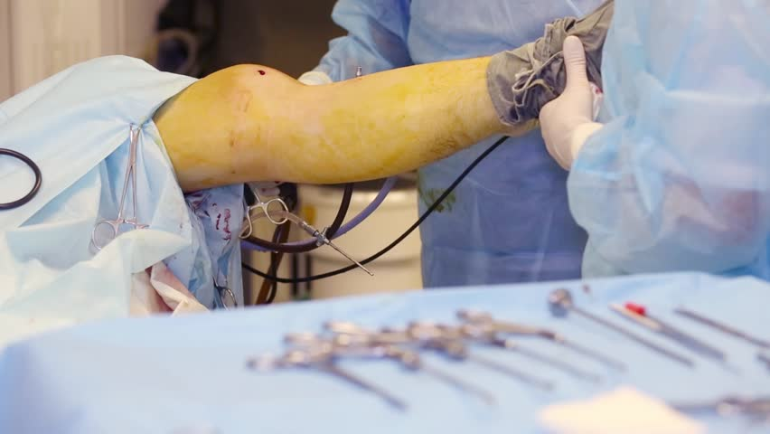 Doctor and nurse hands during endoscopic surgery on knee joint