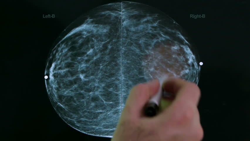 Mammogram X Ray Analysis (HD) by a Doctor's hand and pen lamp showing fibroid tissue growths.