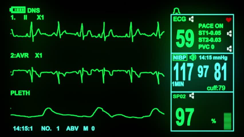 ECG monitor screen, hd, 1080p high definition, seamless loop
